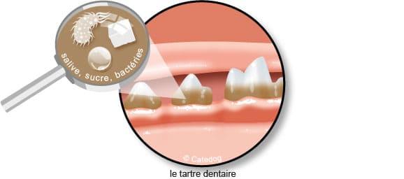 tartre-dentaire-salive-bacterie-dent-chien