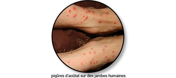 boutons-piqures-larve-aoutat-homme