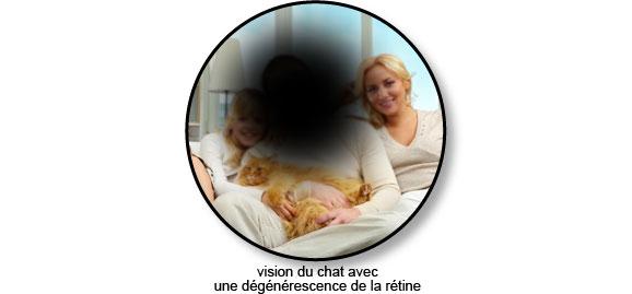 degenerescence_retine_oeil_chat