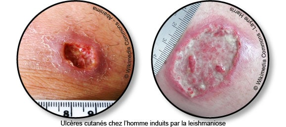 leishmaniose-homme-phlebotome-chien