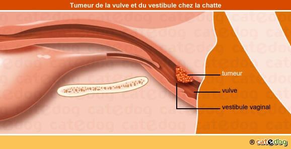 tumeur-maligne-benigne-metastases-vulve-vestibule-chatte