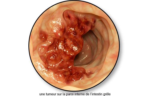 tumeur-paroi-interne-intestin-grele-chien-chat