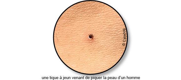 piquer-piqure-tique-peau-homme