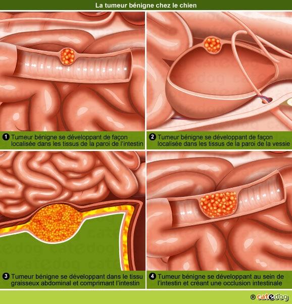 definition-tumeur-benigne-intestin-vessie-chien